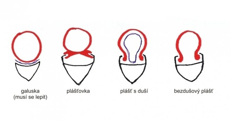 Plast.jpg